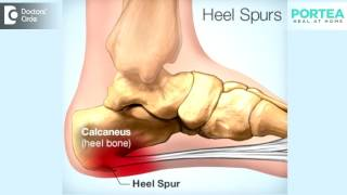 What are the effects of untreated heel spurs?