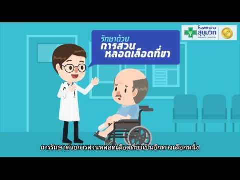 โรงพยาบาล phlebologist การเจริญเติบโต NCRW