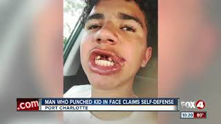 12 year-old boy punched by adult and was not arrested