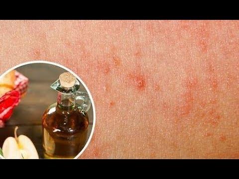 Skutki uboczne leków na łuszczycę
