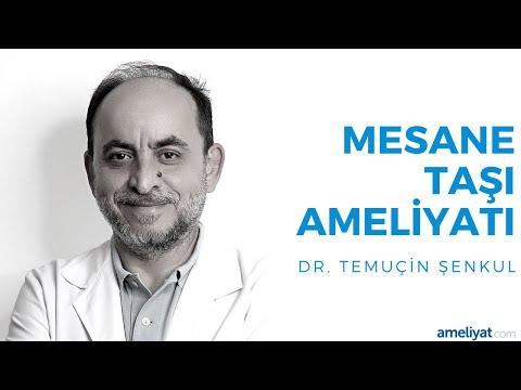 Mesane Taşı Ameliyatı (Prof. Dr. Temuçin Şenkul)