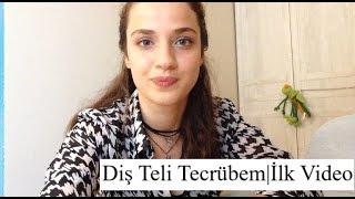 Diş Teli Tecrübem   İlk Video