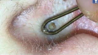 Ear Blackheads, Blackhead Removal Tools