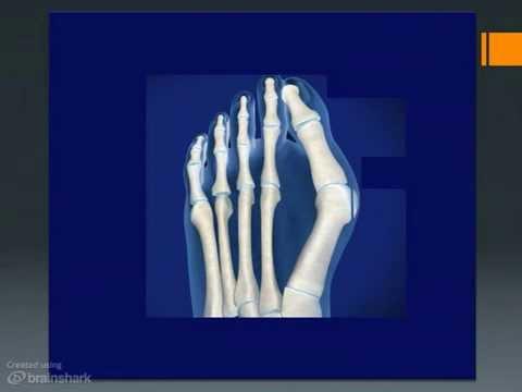 ชนในหลอดเลือดดำในเท้า