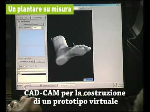 Complicazioni di operazioni di colonna cervicale