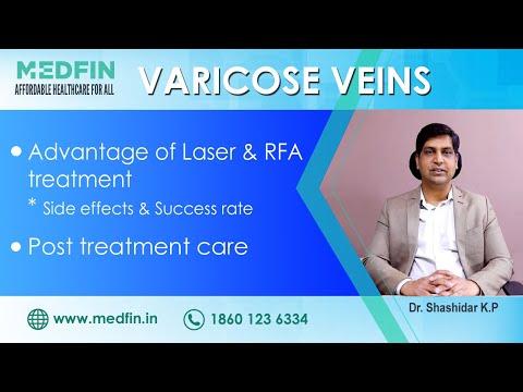 Tratamentul bandajelor elastice varicoză