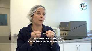 Biomateriales para la salud: Reemplazo de huesos con polímeros