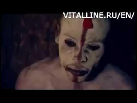 Laserowe leczenie alkoholizmu Krasnojarsku