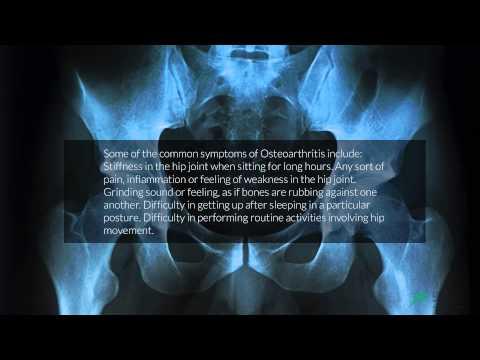 Welche Vitamine Injektionen in Osteochondrose