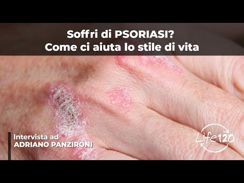 Foglia dalloro neurodermatitis