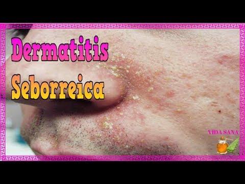 Atopichesky la dermatitis se combina