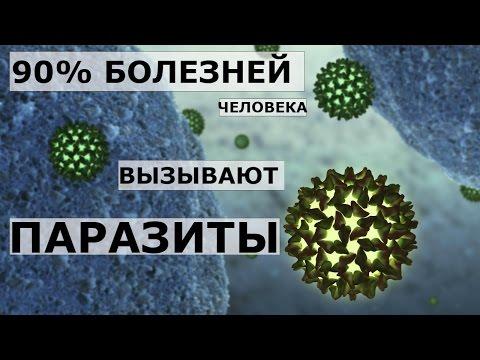 Все о паразитах в организме человека