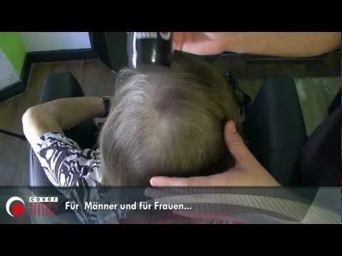 Die neuen Prozeduren der Wiederherstellung des Haares