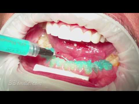 Video Procedures of Cosmetic Dentistry Treatment at Cosmetic Dental Associates