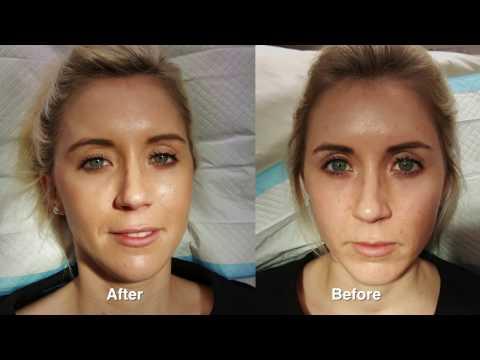 Juvederm rejuvenation w/ Before & After Pictures