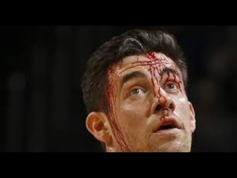 Depantsed! OKC Thunder big man Nick Collison on the time he got his shorts pulled down during game.