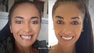 Youtube Video 2018 Australian Bride Dental Veneers Smile Makeover by Brighter Image Lab
