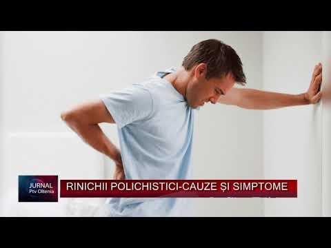 Medicul tratează durerile de cot