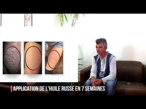 Le psoriasis sur les jambes le traitement