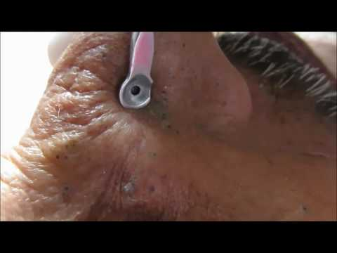 The Nose Full of Blackheads (Part 1)