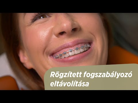 paraziták fogászati kezelése)