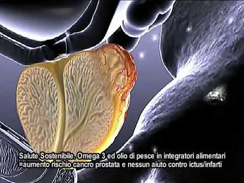 Prostata pratica il video di massaggio