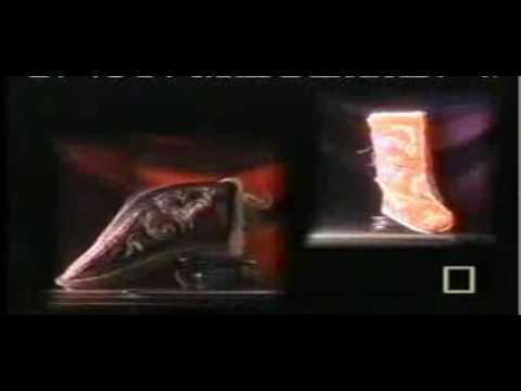 Usuwanie kości na stopach pracy kciuk w Penza