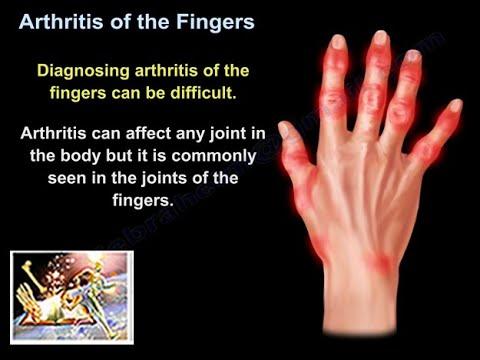 Zapalenie stawów palców ręki