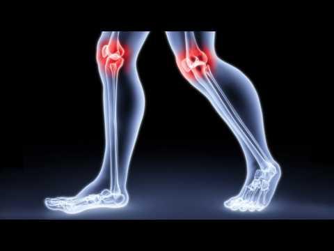 Можно ли вставать на колени после эндопротезирования коленного сустава