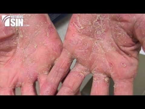 Como se forma la psoriasis del vídeo