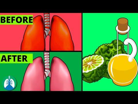 Patch-uri de la varicoză și vasculită