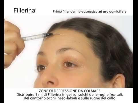 La procedura efficace da posti di pigmentary