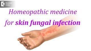 Homeopathic medicine for skin fungal infection - Dr. Surekha Tiwari