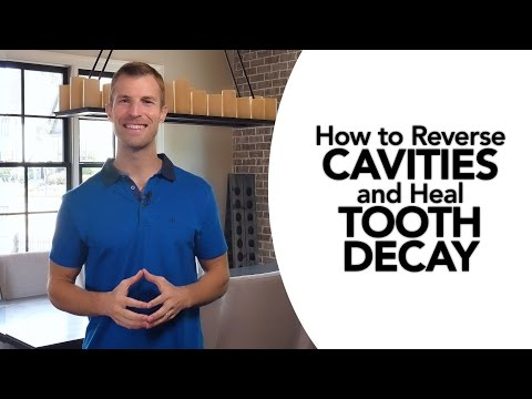 Video How to Reverse Cavities and Heal Tooth Decay