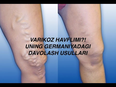 Exercitarea cu vene varicoase