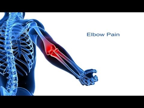 Video 5 Steps to Elbow Pain Relief