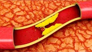 Чистим сосуды головы и тела | #чисткасосудов #холестериновыебляшки #edblack