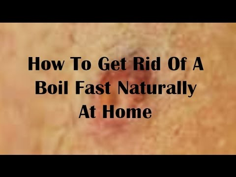 Video How To Get Rid Of A Boil Fast Naturally At Home