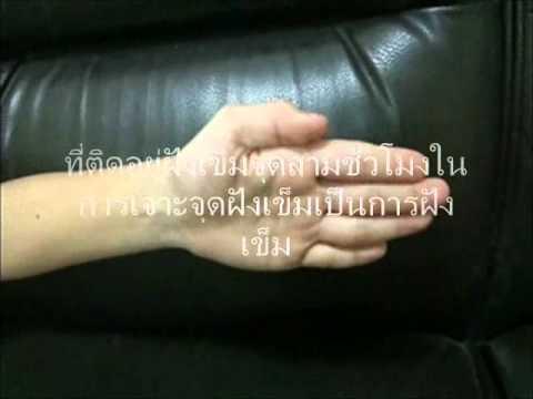 กลากของมือคือ