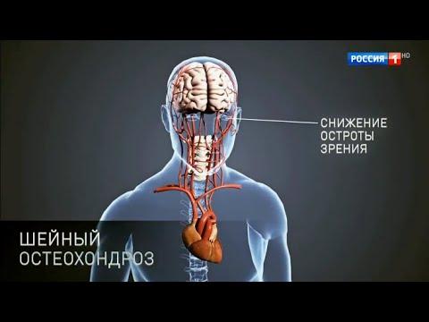Упражнения для позвоночника грудного отдела при смещении позвонков