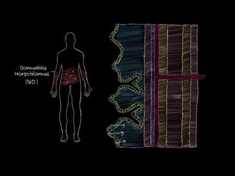 Çölyak Hastalığı Nedir? (Sağlık ve Tıp)