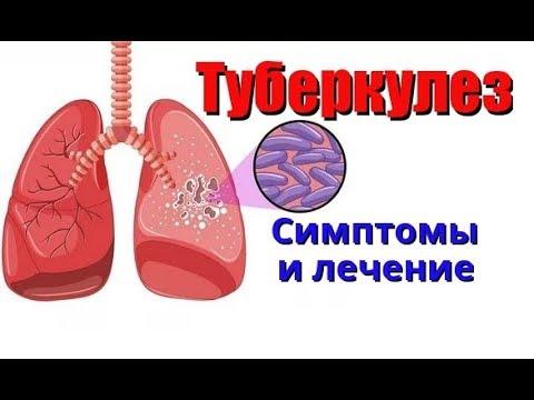 Туберкулез. Симптомы и лечение