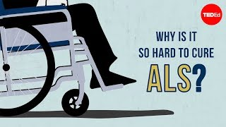 Why is it so hard to cure ALS? - Fernando G. Vieira