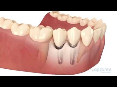 Bone grafting - Lapointe dental centres