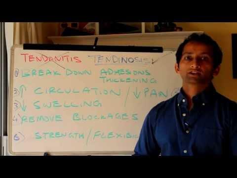 Video How To Treat Tendonitis The Right Way | Manu Kalia | Video 124 | TridoshaWellness