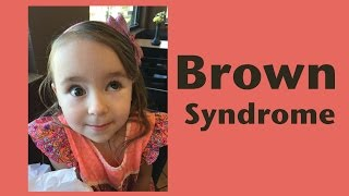 Brown Syndrome - My Daughter Can't Move Her Eye