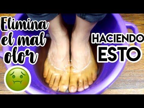 El tratamiento de la exfoliación de la uña en el pie