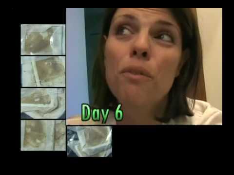 Giardiasis diagnózis