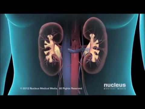 Video Kidney Disease Symptoms and Treatments   Kidney Transplant & Dialysis For Kidney Disease