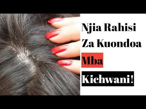Jinsi Ya Kuondoa Mba Kichwani Kwa Urahisi Nyumbani Kwako